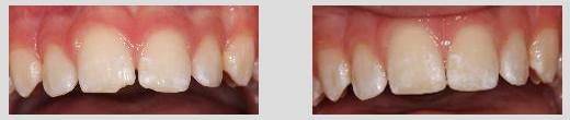 Dentistry Naples Florida